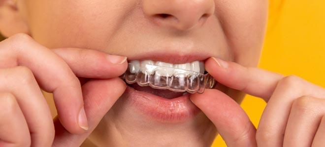Tandblekningsmedel för effektiv tandblekning